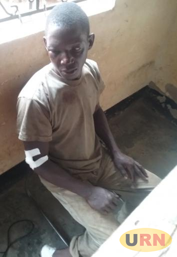Godfrey Ssekalongo a resident of Manywa village who was beaten by Policemen
